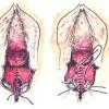 Sutura da ferida e cicatrização – Parto vaginal