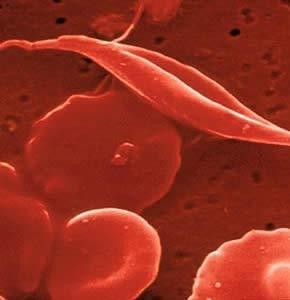 células-estaminais